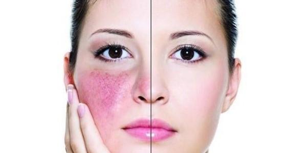 سماق برای پوست صورت